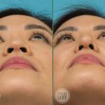 Dorsal augmentation + tip refinement + alar base reduction