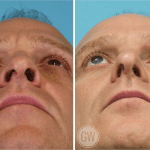 Rhinoplasty + alar base reduction + septoplasty + turbinate reduction