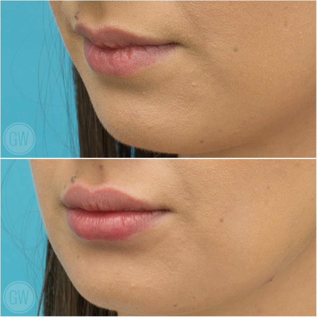 By Photo Congress || 0 5ml Lip Filler Perth