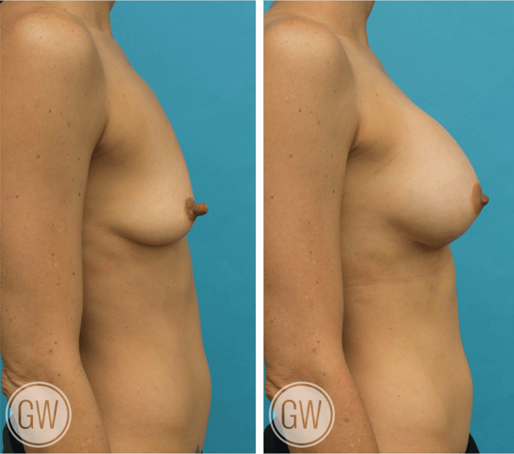 Nipple reduction +300cc dual plane anatomical breast implants