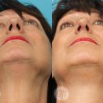 Rhinoplasty + facelift + neck lift + upper and lower eyelid surgery