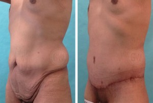 Dr Guy Watts Perth Plastic Surgeon Body Lift