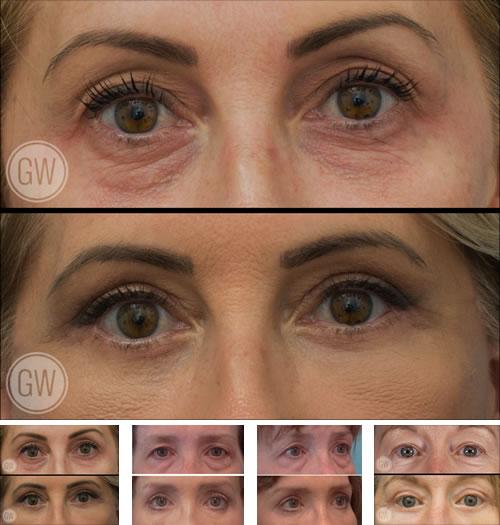 Dr Guy Watts Perth Eyelid Rejuvenation Blepharoplasty