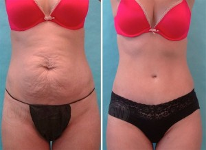 Dr Guy Watts Perth Plastic Surgeon Tummy Tuck