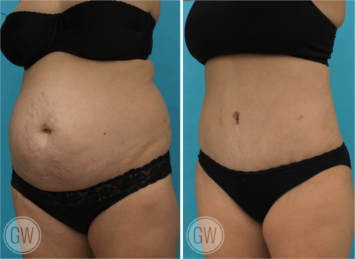 Tummy tuck + 360 liposuction - Dr  Guy Watts