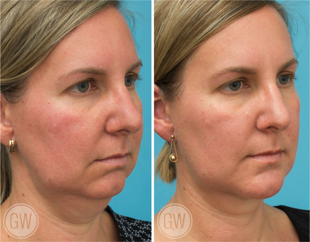 Dr Guy Watts Plastic Surgeon Perth | Gallery | Chin Augmentation