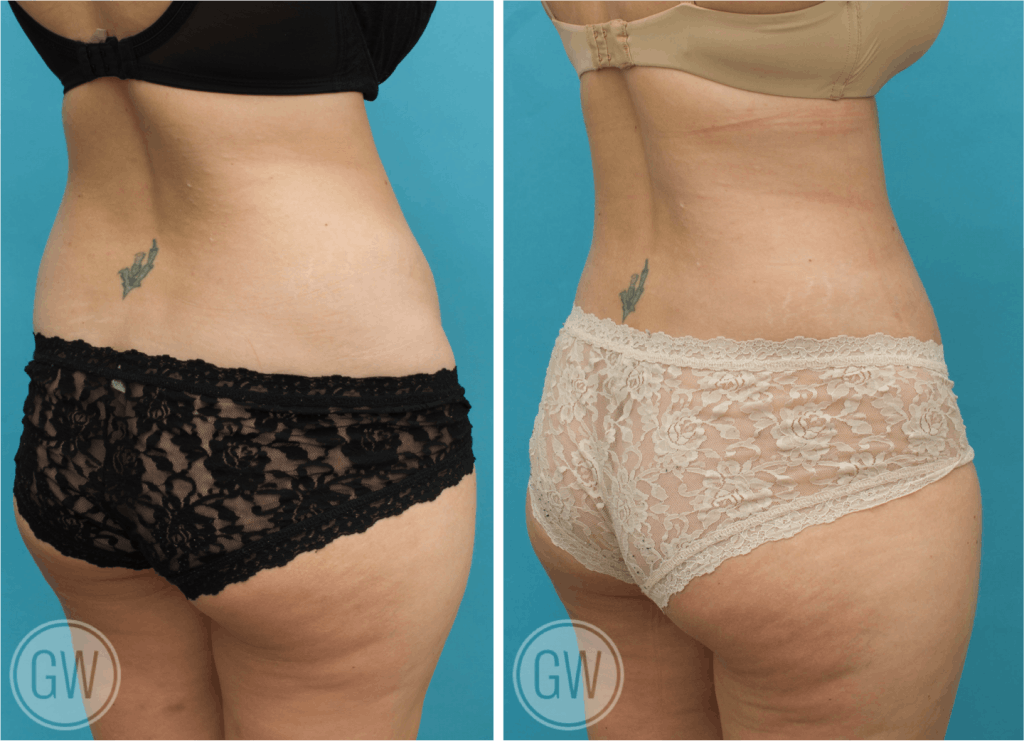 Plastic Surgeon Perth | Gallery | Tummy Tuck (Abdominoplasty)
