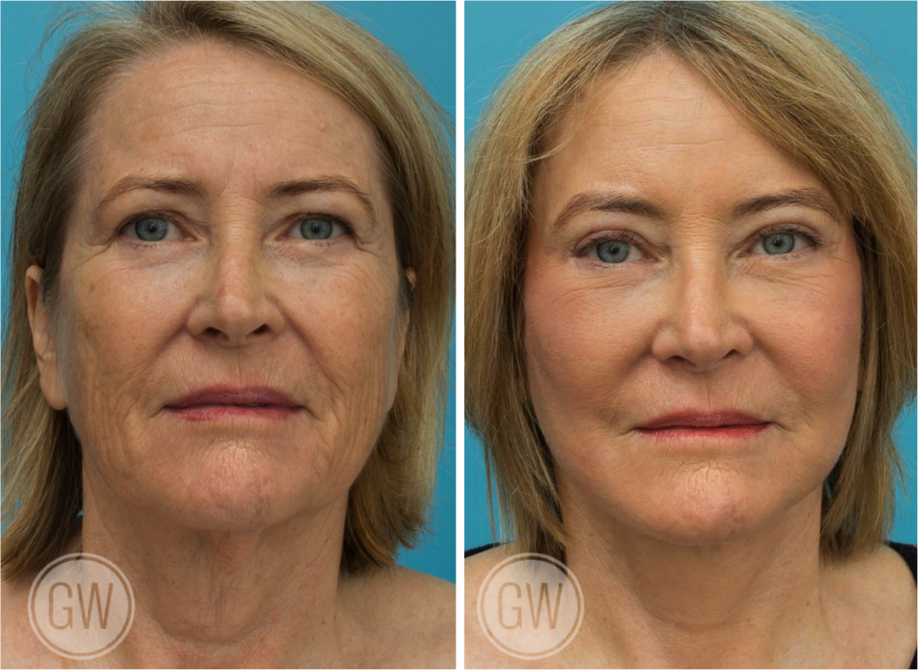 Face Lift Perth | Gallery | Face Lift