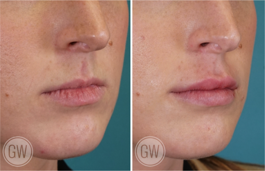 Dr Guy Watts Plastic Surgeon Perth   Gallery   Non-Surgical